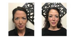 Kelly Botox Before and After