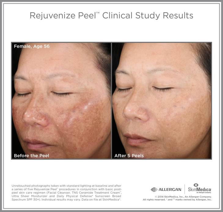 photo gallery Rejuvenize Peel Female Age 56