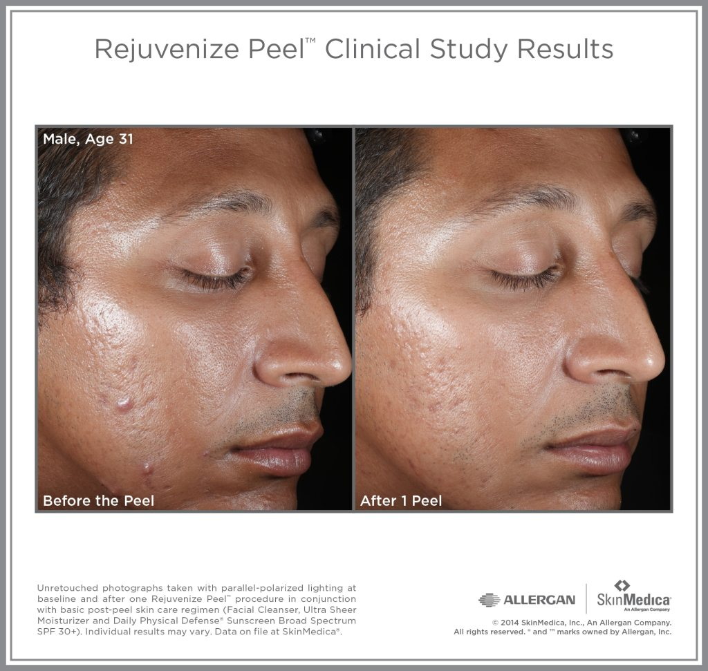 Rejuvenize Male Before and After