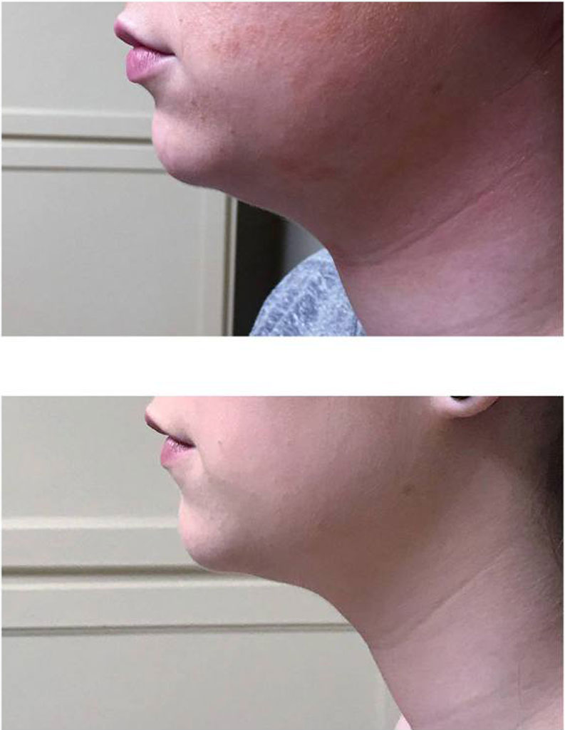Kybella Before & After