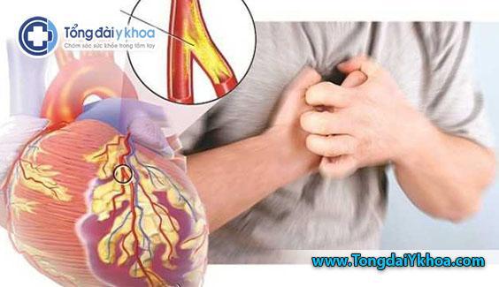 Củ nghệ làm chậm hoặc ngăn ngừa cục máu đông, giảm nguy cơ mắc bệnh tim mạch