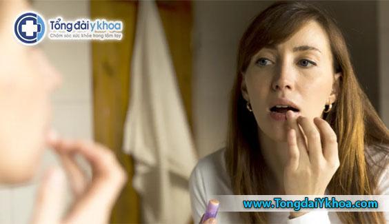 Nguyên nhân gây nứt nẻ môi và cách điều trị