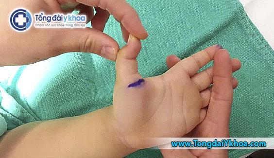 ngón tay cò súng ở trẻ triger finger baby