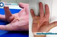 Bệnh Dupuytren là gì ? Tổng quan về bệnh Dupuytren