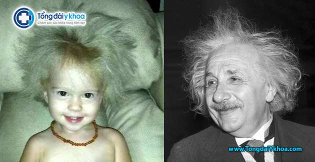 co be co mai toc choi rom Unruly Hair Due To Rare Genetic Condition Einstein