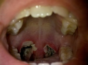 Tonsillectomy Day 3