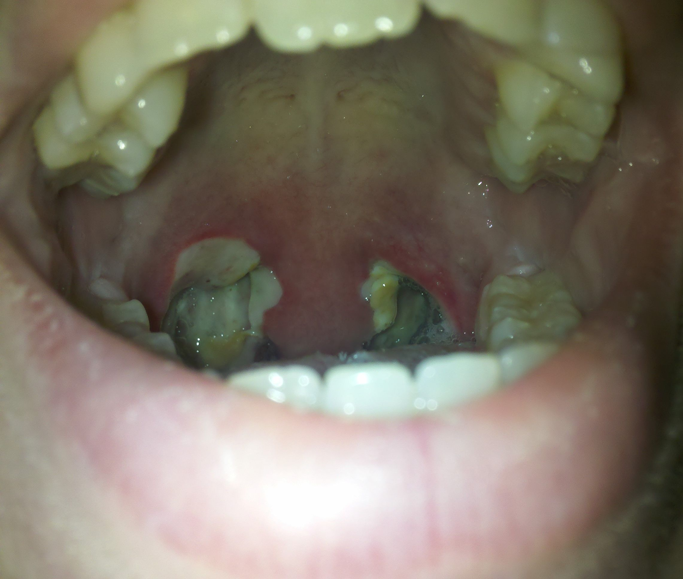 My Experience With Uvulitis (Not Fun)