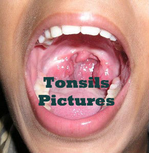 tonsillectomy recovery pictures