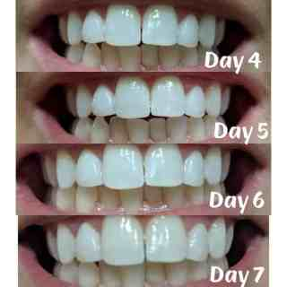 burst whitening strips before and afters