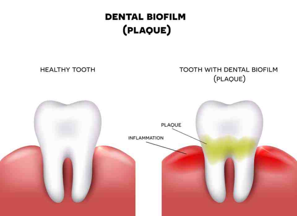 Dental plaque with inflammation and healthy tooth on a white background