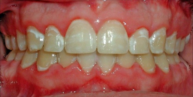 Enamel hypoplasia white spots on teeth