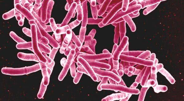 tuberculose uma das doenças mais mortais do mundo