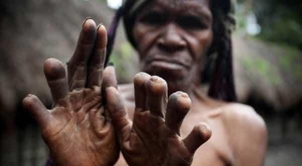 Corte de Dedo da Tribo Dani entre as mais bizarras tradicoes no mundo
