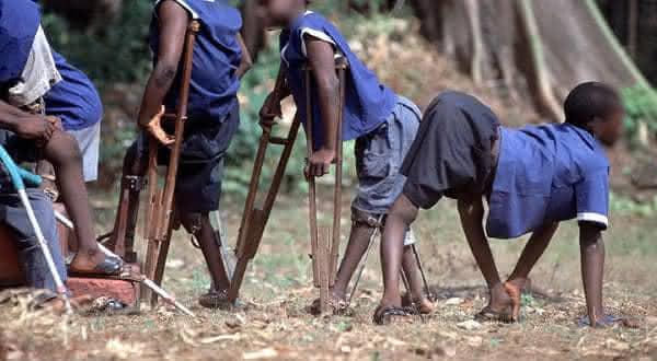poliomelite entre as epidemias mais mortais da historia