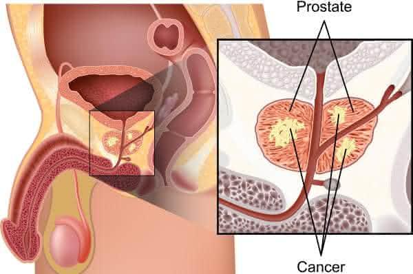 cancer de prostata entre os tipos de cancer mais agressivos