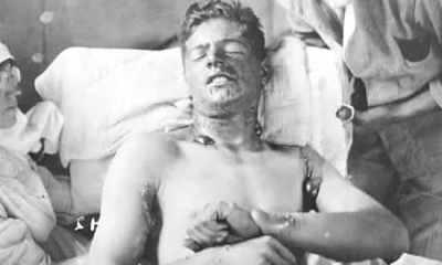 top 10 chocantes experimentos nazistas