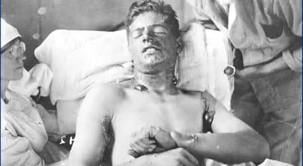 esperimentos incendiarios entre os chocantes experimentos nazistas