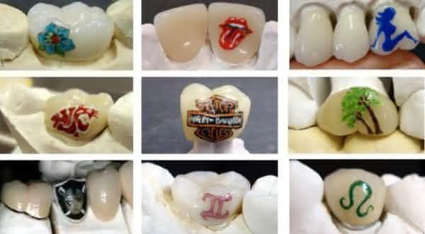 tatuagem nos dentes entre as novas maneiras de fazer tatuagem