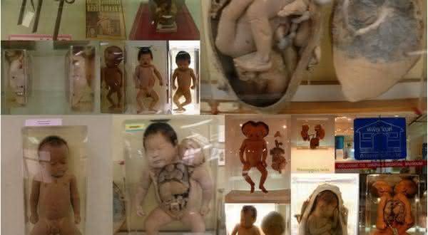 Siriraj Medical Museum entre os mais estranhos museus do mundo