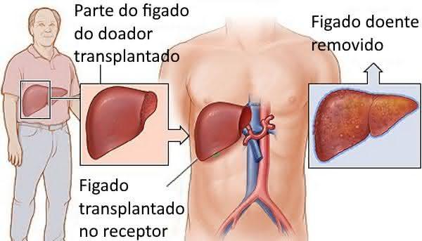 transplante de figado entre os procedimentos médicos mais caros do mundo