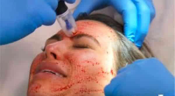 Vampire Facial entre os tratamentos de beleza facial mais caros do mundo