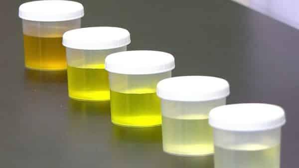 vinho urina entre os metodos de teste de gravidez bizarros
