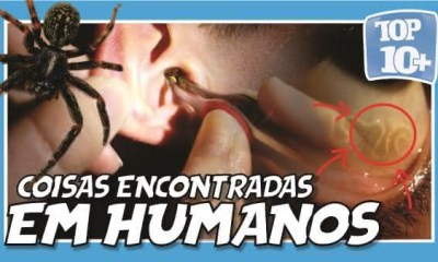 Top 10 coisas horripilantes encontradas vivendo dentro do corpo humano 12