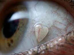 Implantes oculares tendencias de modas más Raras del mundo