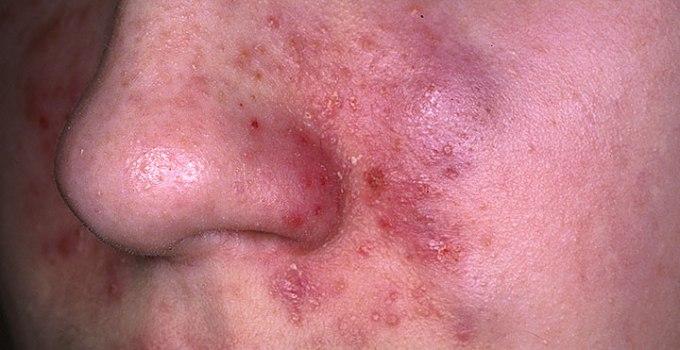 10 Remedios Caseros Para La Dermatitis