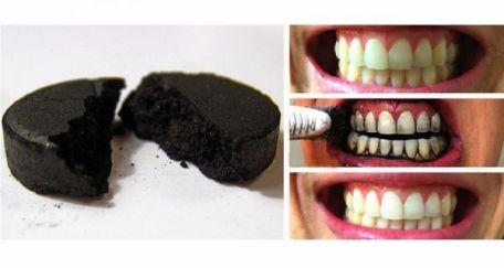 Carbón blanquear dientes