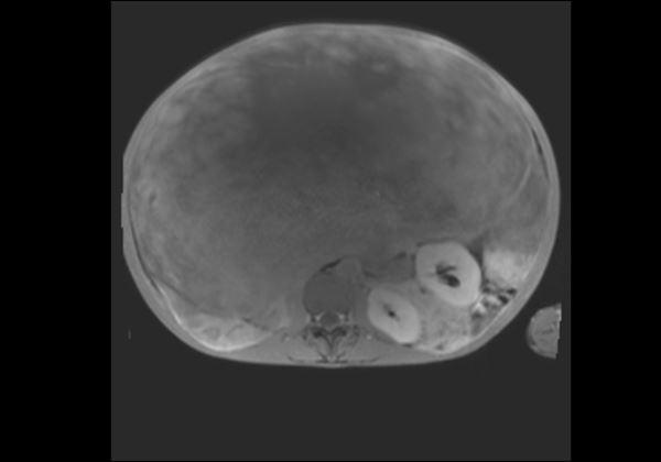 罕見!21公斤惡性脂肪肉瘤如保齡球 | 華人健康網