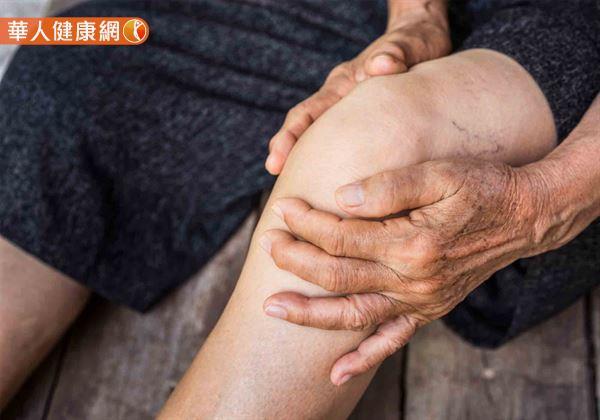 根據統計,70歲以上的年長者退化性膝關節炎發生率高達70%,且女性多於男性;好發於膝關節、手關節、髖關節,也可見於其他關節如脊椎,腕關節等。