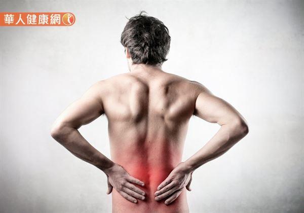 根據研究,約有80%的人在一生中曾發生過背痛的症狀。