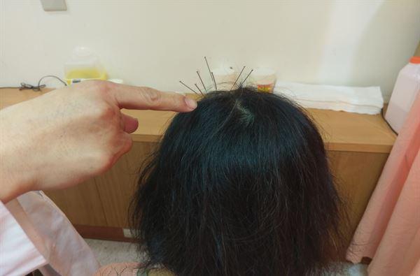 這名患者經由針灸方式,以梅花針排列法刺激頭皮穴位,使皮膚循環變好,防止掉髮持續向外擴散出去,兩星期逐漸改善。(圖片提供/豐原醫院)