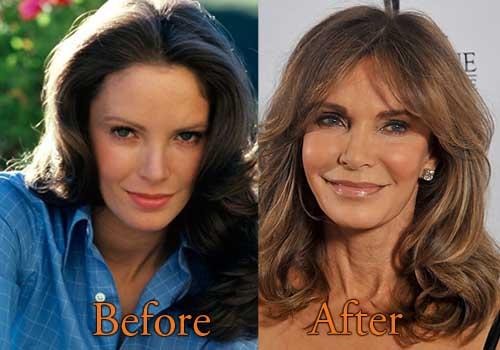 Jacqueline Smith Actress Plastic Surgery