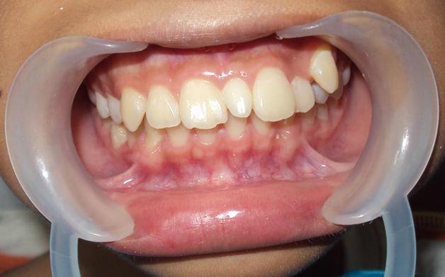 Болезнь когда много зубов во рту