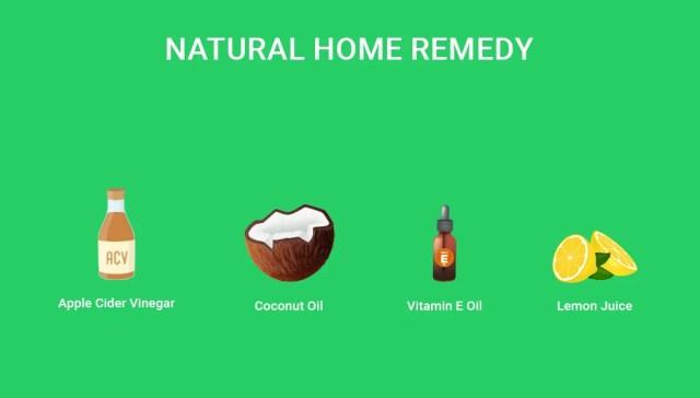 Dog Hair Loss Home Remedies 1