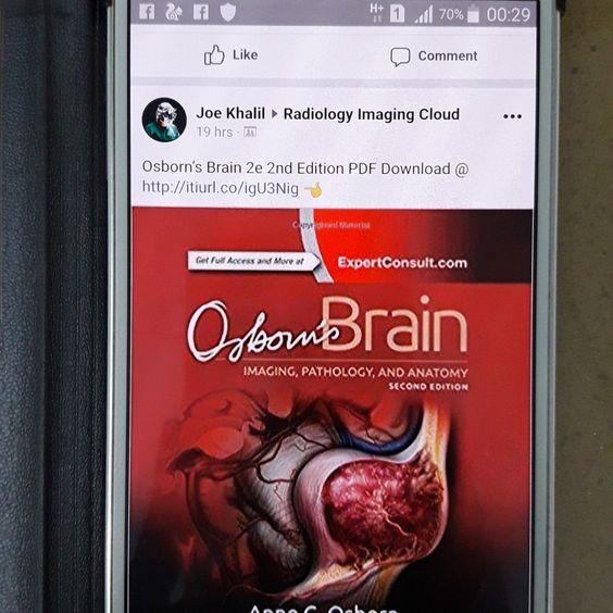 Osborn's brain pdf free download written by Anne G. Osborn