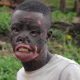 Man pleads with his wife to return after she left due to his burnt face