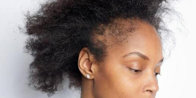 Postpartum hair loss: Causes & what to do about it
