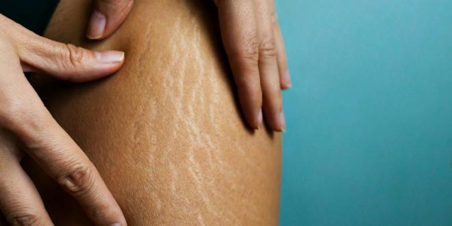 Natural Remedies: How to remove stretch marks naturally