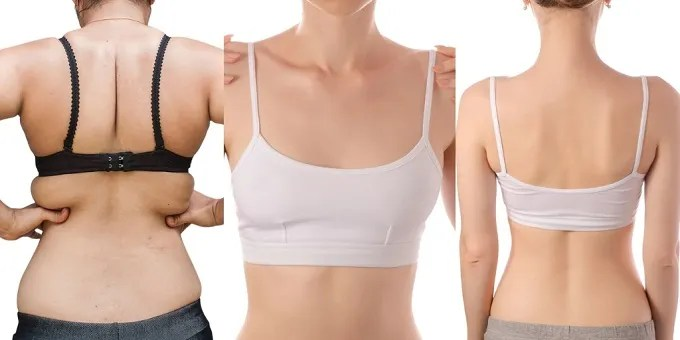 The Best Bra for Back Fat, Shoulder Pain You Need to Know About (Top 15 Reviews)