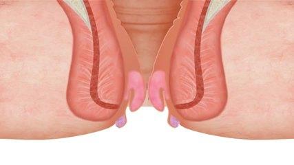 hemoroidy żylaki odbytu