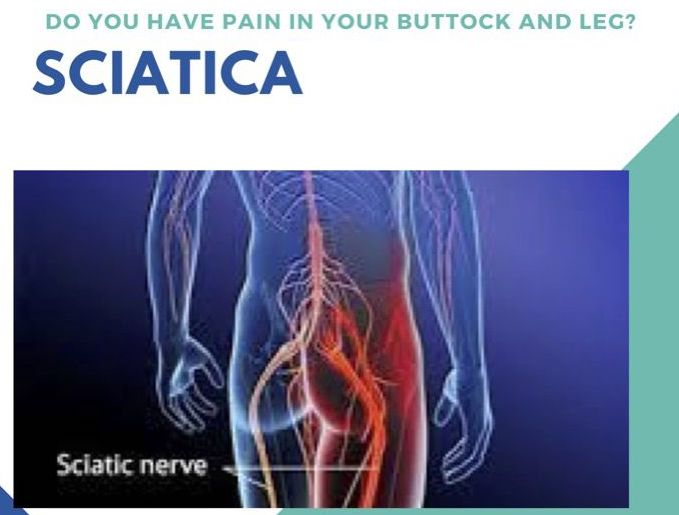 How To Treat Sciatica
