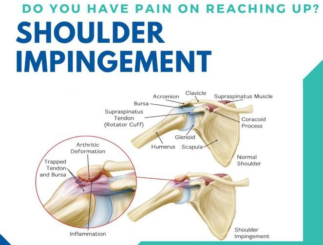 How To Treat Shoulder Impingement