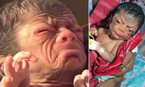 PIC FROM CATERS NEWS - (PICTURED: A baby boy who was born with a condition called Progeria in Bangladesh.) - A real life curious case of Benjamin Button has emerged following the birth of a baby boy who looks like an 80-year-old man. The baby was born in the district of Magura, Bangladesh, on Sunday. Local doctors, who have been left stunned, say the baby suffers from a rare condition called progeria. The baby boy has wrinkles on the face, has a very shrunken body and hollow eyes. The baby does not look like a new born at all. There are prominent sings of ageing such a excessive wrinkles and rough skin texture, said a doctor who has been treating the baby. However, the parents of the baby are jubilant with the birth of their miracle child. SEE CATERS COPY.