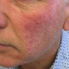 Rosacea Update: - Toronto Dermatology Centre