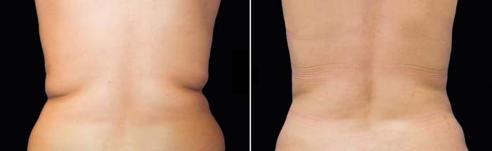 CoolSculpting Toronto - BEFORE & AFTER TREATMENT OF THE BACK