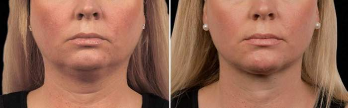 CHIN CoolSculpting in Toronto