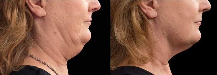 Side profile CHIN CoolSculpting in Toronto